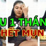 Review Mộc Tâm An Phan Nhi – Kem Trị Mụn MTA