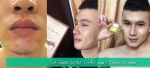 Kem Trị Mụn Cho Nam – Hết Mụn Sau 1 Tháng