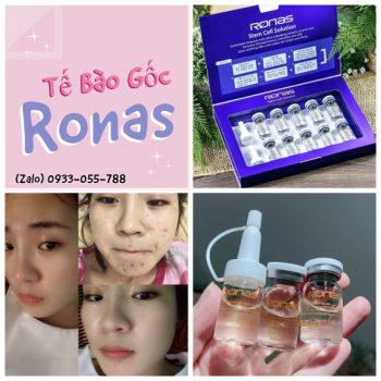 Tế Bào Gốc Ronas Hàn Quốc -Trị Sẹo Rổ – Dưỡng Trắng Da 05BKR02