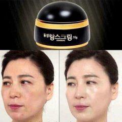 Kem DONGSUNG Trị Nám Hàn Quốc