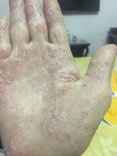 Thuốc Trị Bệnh Chàm Eczema LEBORO Mỹ 17AUS01